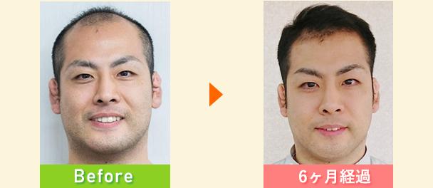 30代男性の変化