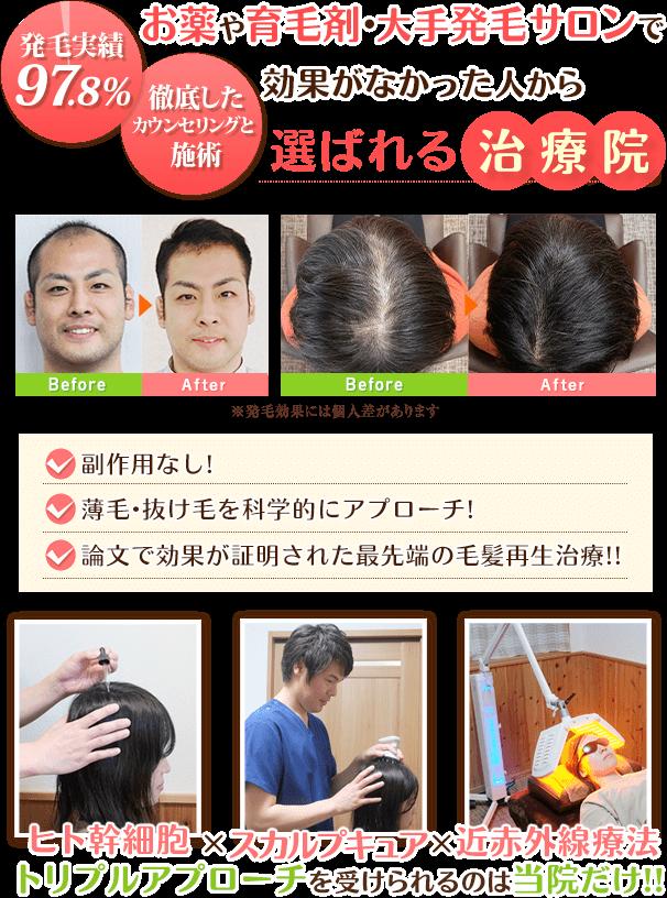 ヒト幹細胞×近赤外線療法×育毛発毛鍼トリプルアプローチを受けられるのは当院だけ!