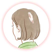 自分で髪を抜いてしまう女性のイメージ