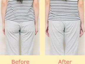 ヒップラインが整い腰痛改善