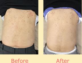 背中の湿疹が改善