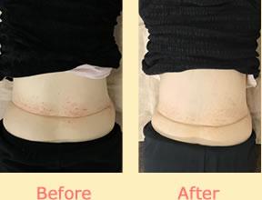 腰部の湿疹が改善